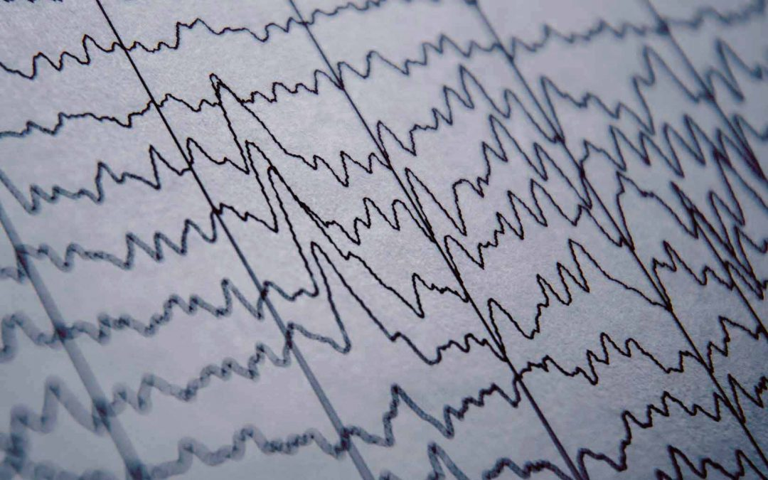 Transcranial direct current stimulation tDCS – a novel treatment for autism?
